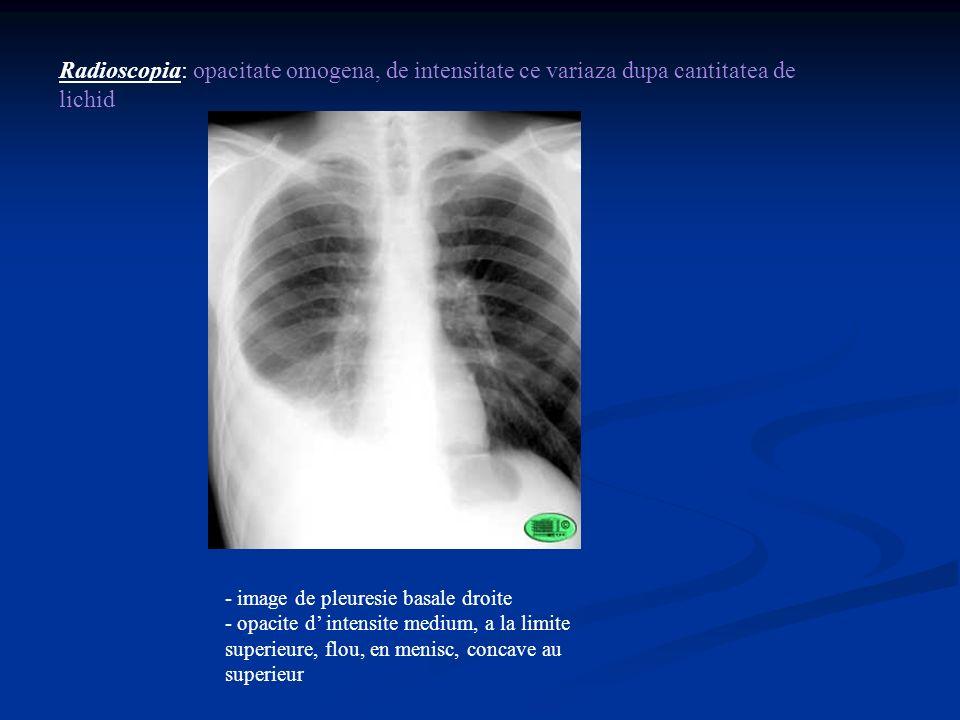 Radioscopia: opacitate omogena, de intensitate ce variaza dupa cantitatea de lichid - image de pleuresie basale droite - opacite d intensite medium, a