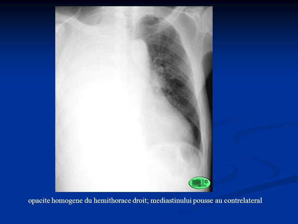 opacite homogene du hemithorace droit; mediastinului pousse au contrelateral