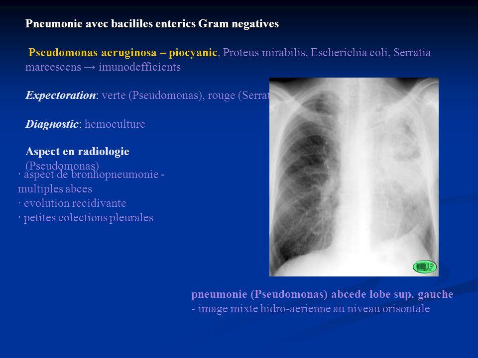Pneumonie avec bacililes enterics Gram negatives Pseudomonas aeruginosa – piocyanic, Proteus mirabilis, Escherichia coli, Serratia marcescens imunodef