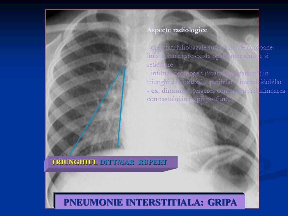 PNEUMONIE INTERSTITIALA: GRIPA TRIUNGHIUL DITTMAR RUPERT Aspecte radiologice - opacitati hiliobazale sub forma de cordoane liniare, intre care exista
