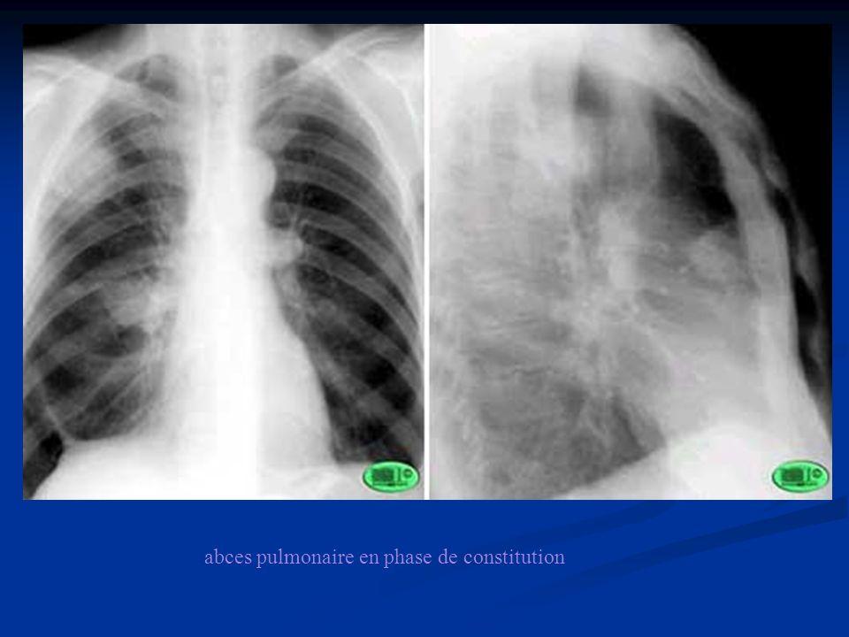 abces pulmonaire en phase de constitution