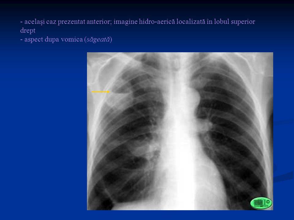 - acelaşi caz prezentat anterior; imagine hidro-aerică localizată în lobul superior drept - aspect dupa vomica (săgeată)