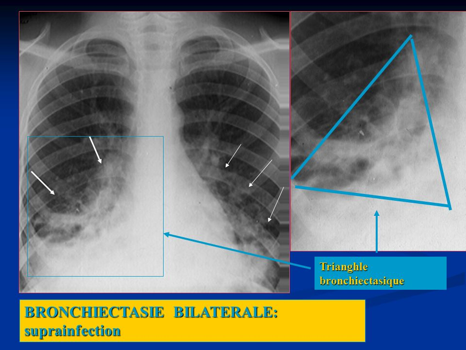 BRONCHIECTASIE BILATERALE: suprainfection Trianghle bronchiectasique