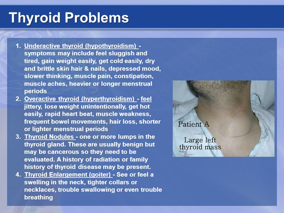 Thyroid Problems 1.Underactive thyroid (hypothyroidism) - symptoms may include feel sluggish and tired, gain weight easily, get cold easily, dry and b