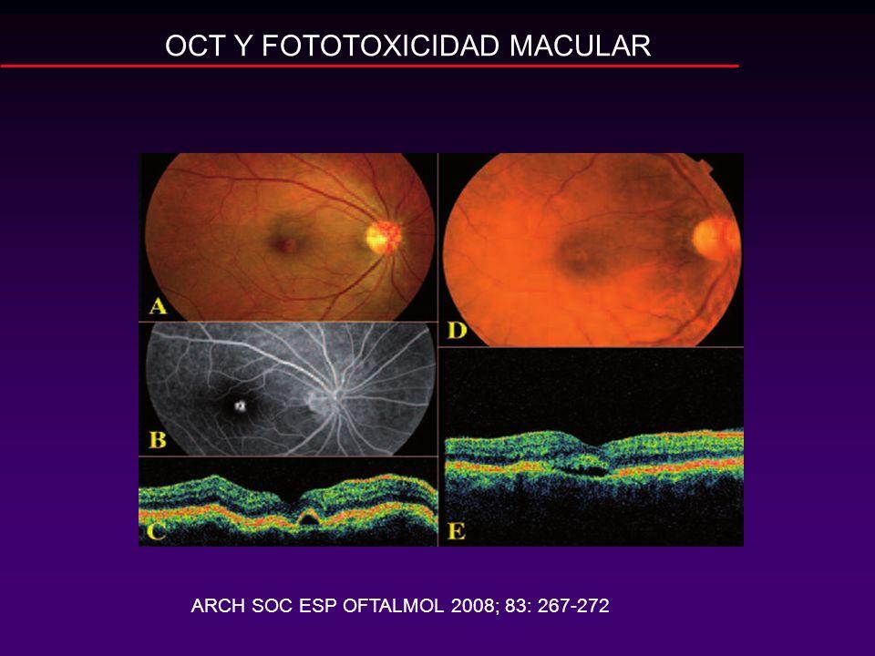 OCT Y FOTOTOXICIDAD MACULAR ARCH SOC ESP OFTALMOL 2008; 83: 267-272