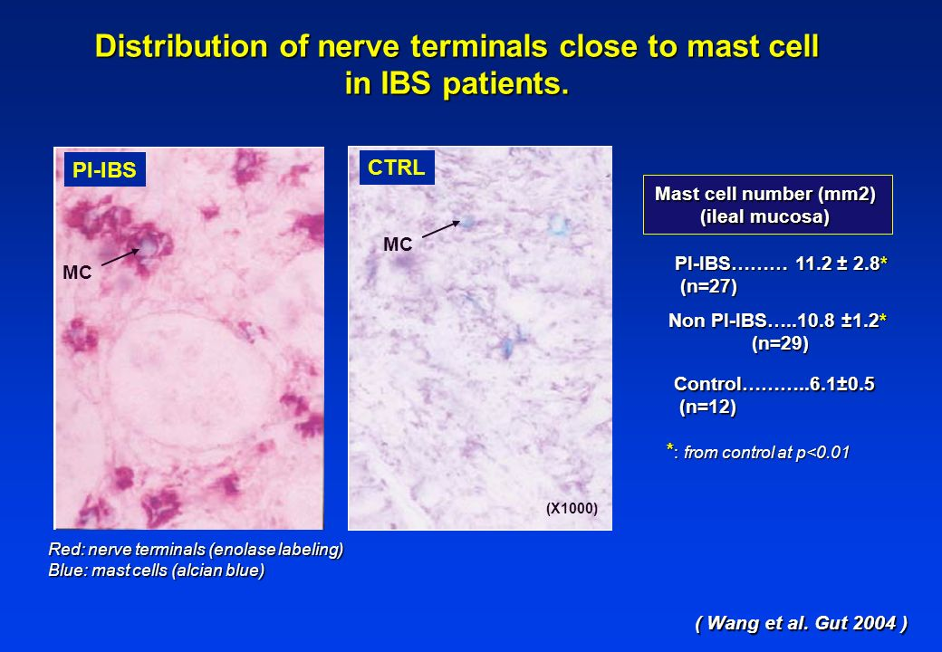 Distribution of nerve terminals close to mast cell in IBS patients. MC Red: nerve terminals (enolase labeling) Blue: mast cells (alcian blue) ( Wang e