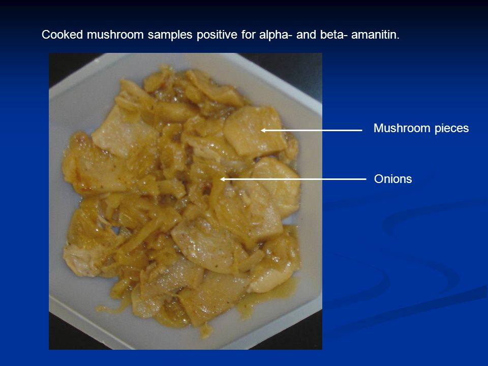 Cooked mushroom samples positive for alpha- and beta- amanitin. Onions Mushroom pieces