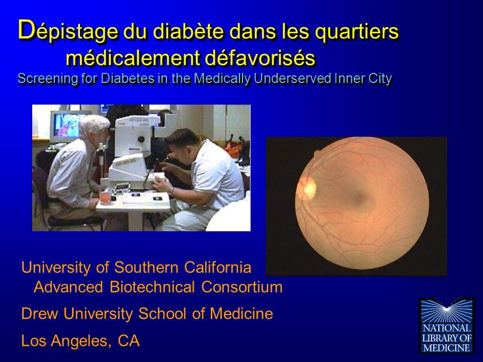 D épistage du diabète dans les quartiers médicalement défavorisés Screening for Diabetes in the Medically Underserved Inner City University of Souther