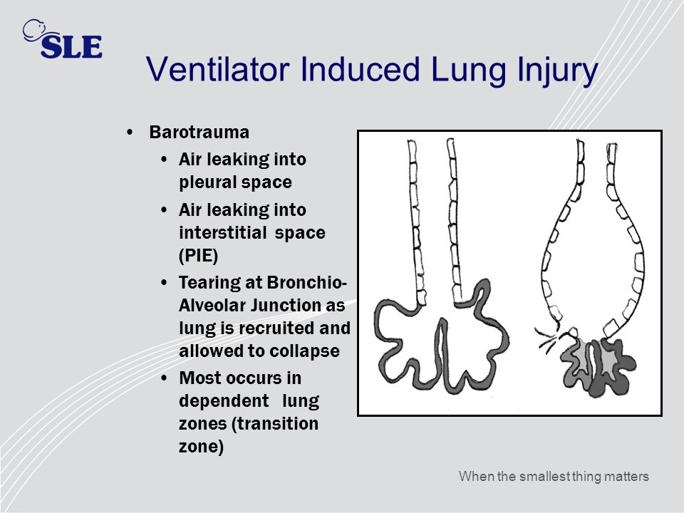 When the smallest thing matters Ventilator Induced Lung Injury Barotrauma Air leaking into pleural space Air leaking into interstitial space (PIE) Tea