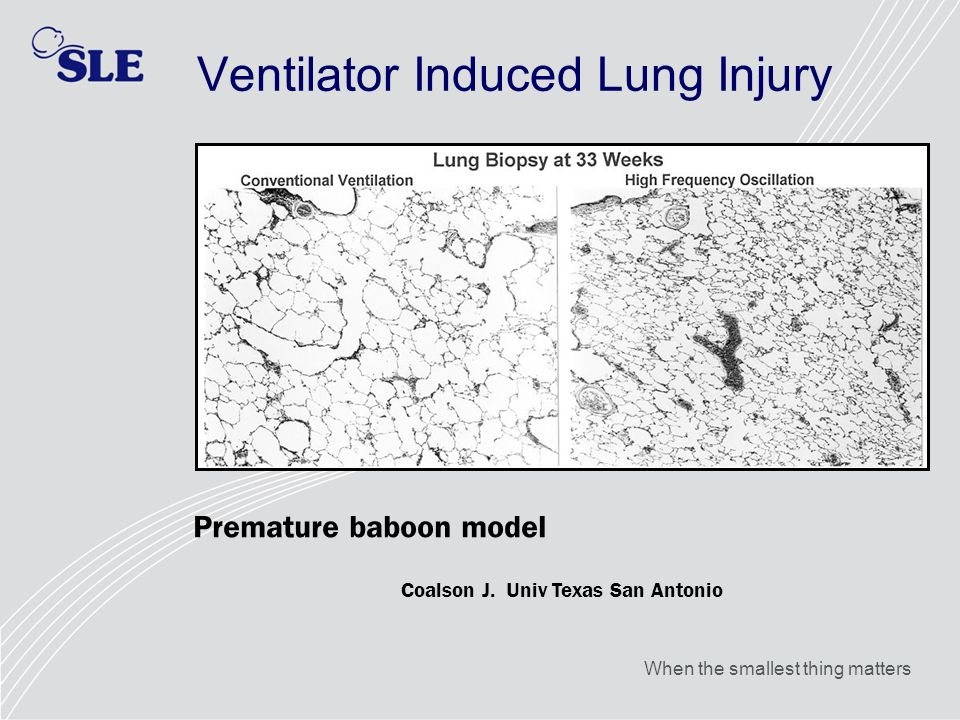 When the smallest thing matters Ventilator Induced Lung Injury Premature baboon model Coalson J. Univ Texas San Antonio