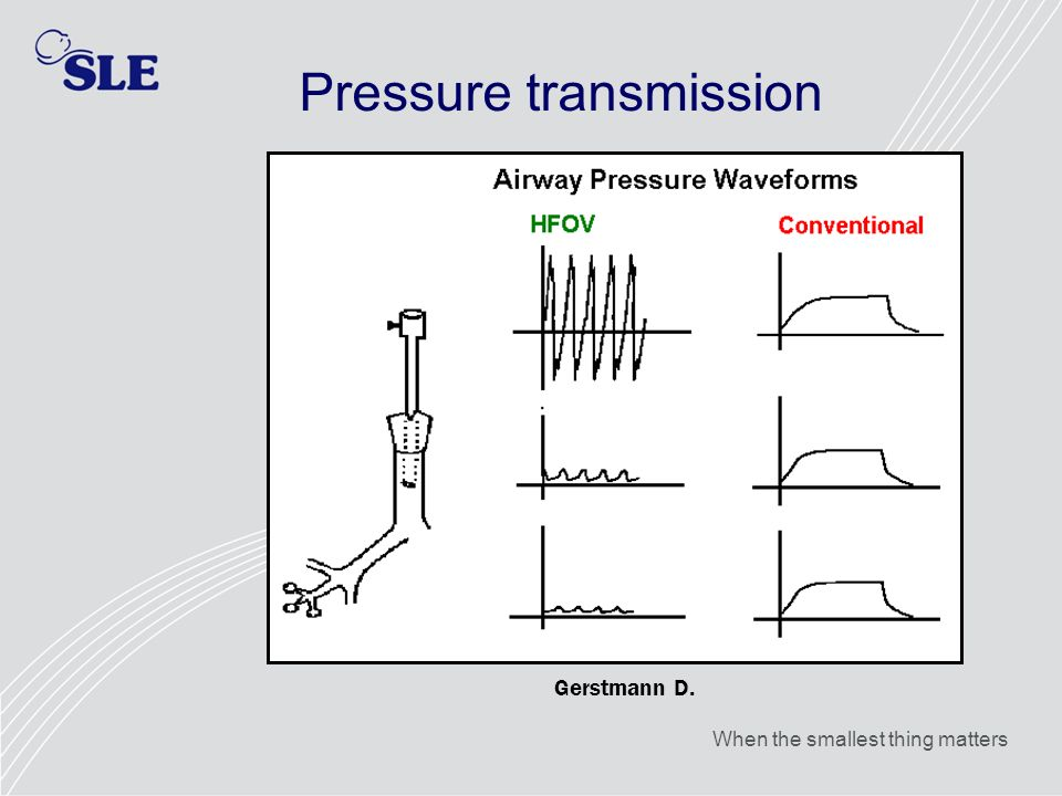 When the smallest thing matters Pressure transmission Gerstmann D.