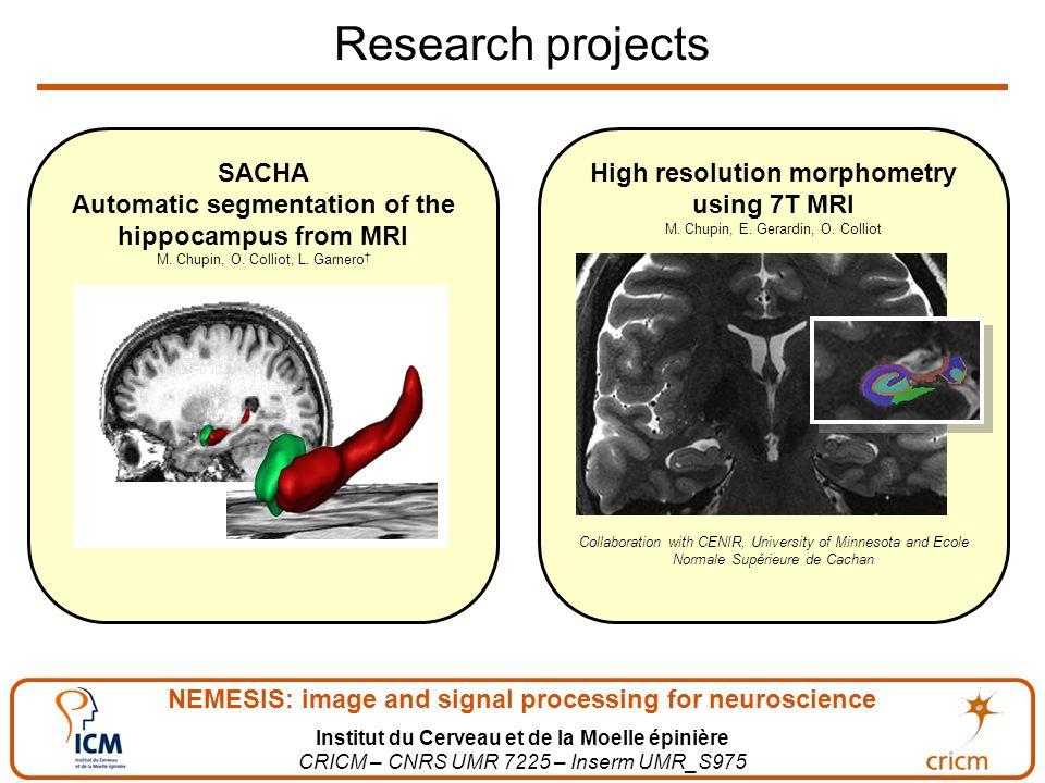 NEMESIS: image and signal processing for neuroscience Institut du Cerveau et de la Moelle épinière CRICM – CNRS UMR 7225 – Inserm UMR_S975 Research projects SACHA Automatic segmentation of the hippocampus from MRI M.