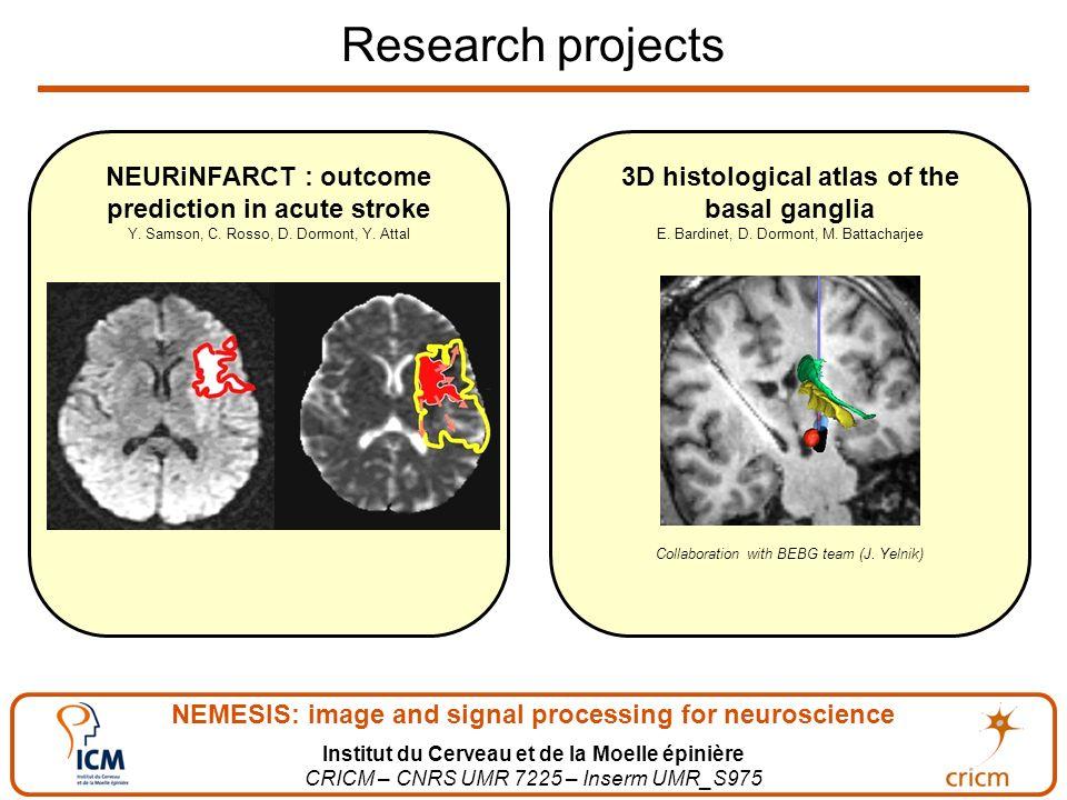NEMESIS: image and signal processing for neuroscience Institut du Cerveau et de la Moelle épinière CRICM – CNRS UMR 7225 – Inserm UMR_S975 Research projects 3D histological atlas of the basal ganglia E.