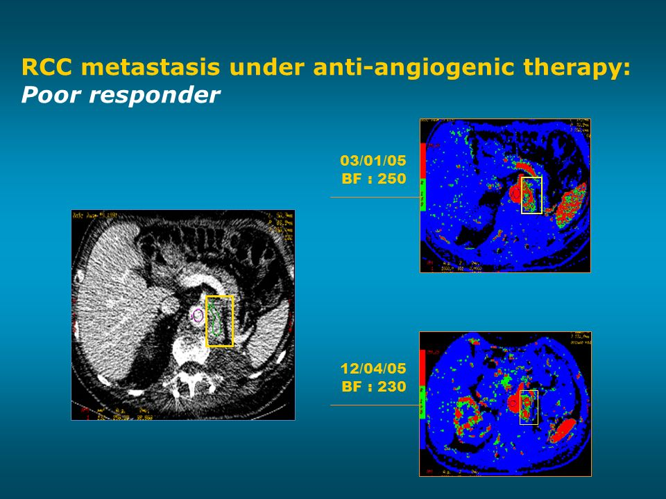 12/04/05 BF : 230 03/01/05 BF : 250 RCC metastasis under anti-angiogenic therapy: Poor responder