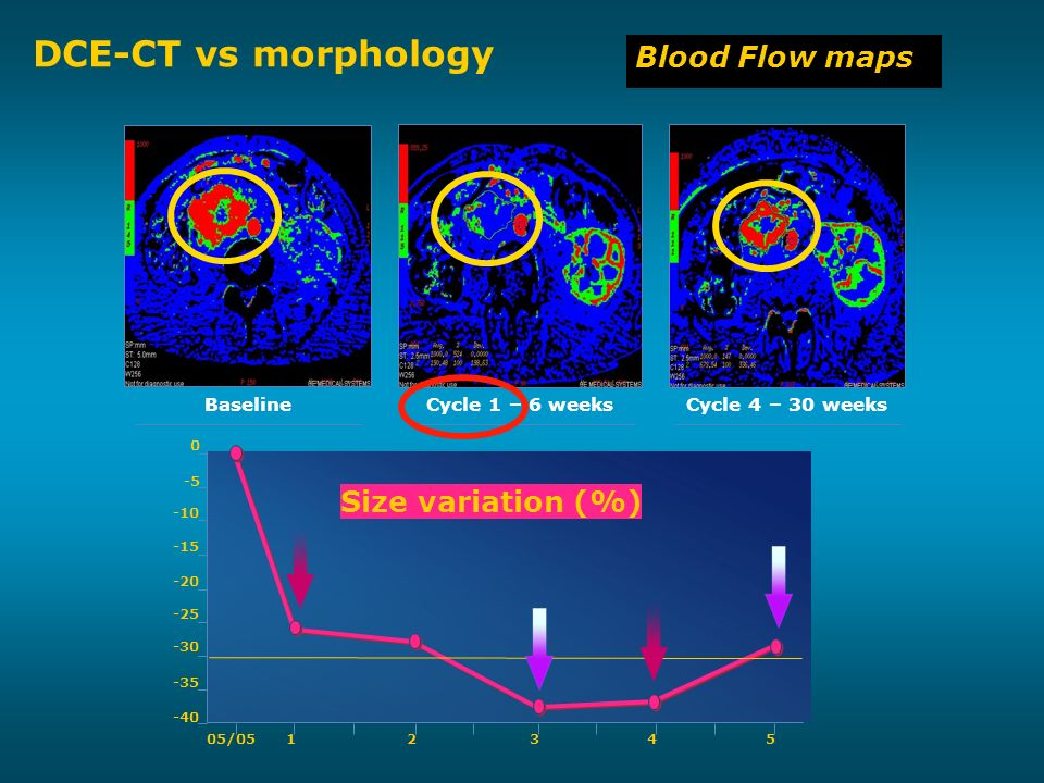05/0512345 -40 -35 -30 -25 -20 -15 -10 -5 0 Size variation (%) DCE-CT vs morphology Blood Flow maps BaselineCycle 1 – 6 weeksCycle 4 – 30 weeks