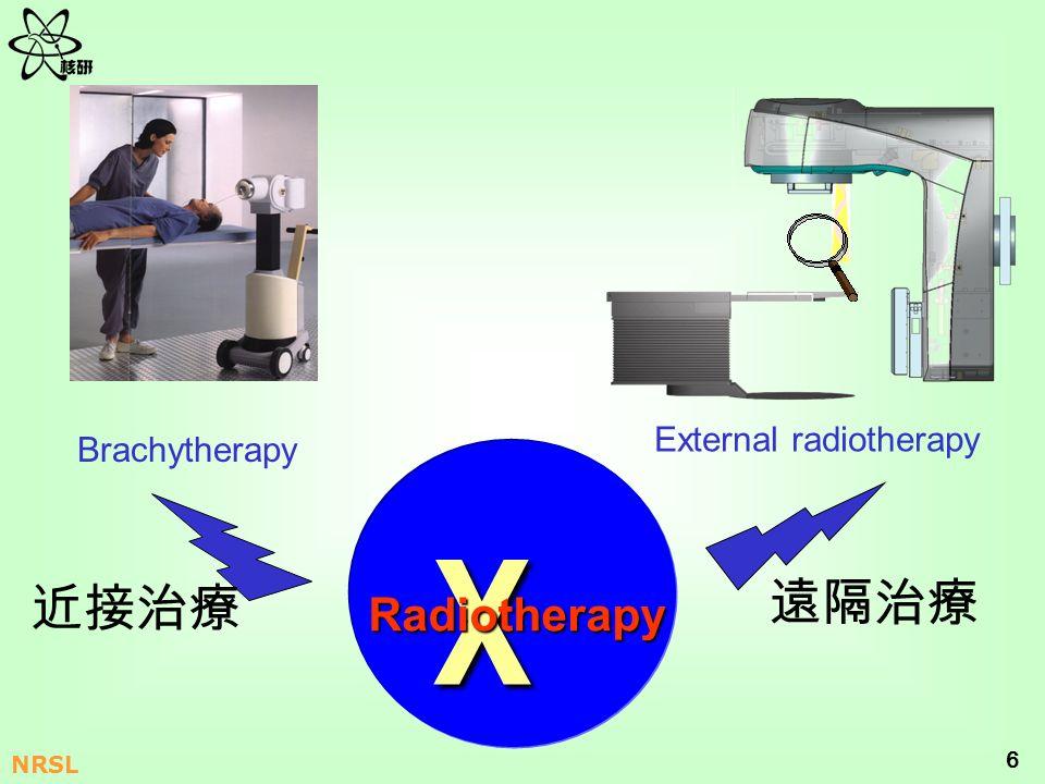 6 NRSL χ Radiotherapy External radiotherapy Brachytherapy