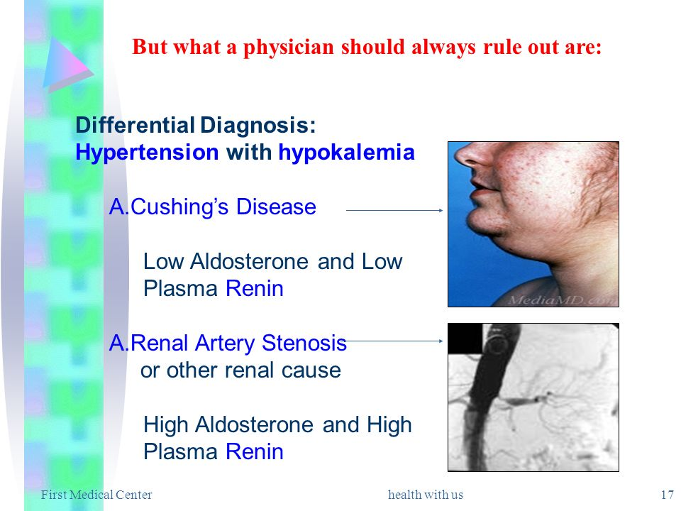 First Medical Centerhealth with us 17 Differential Diagnosis: Hypertension with hypokalemia A.Cushings Disease Low Aldosterone and Low Plasma Renin A.