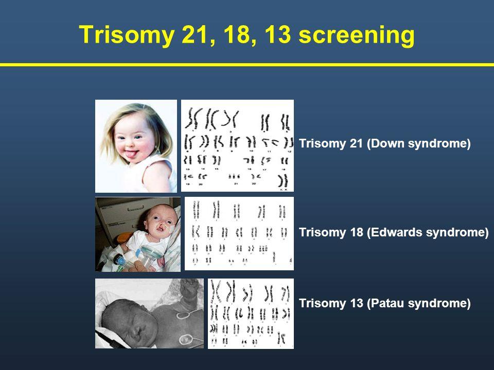 Trisomy 21, 18, 13 screening Trisomy 21 (Down syndrome) Trisomy 18 (Edwards syndrome) Trisomy 13 (Patau syndrome)