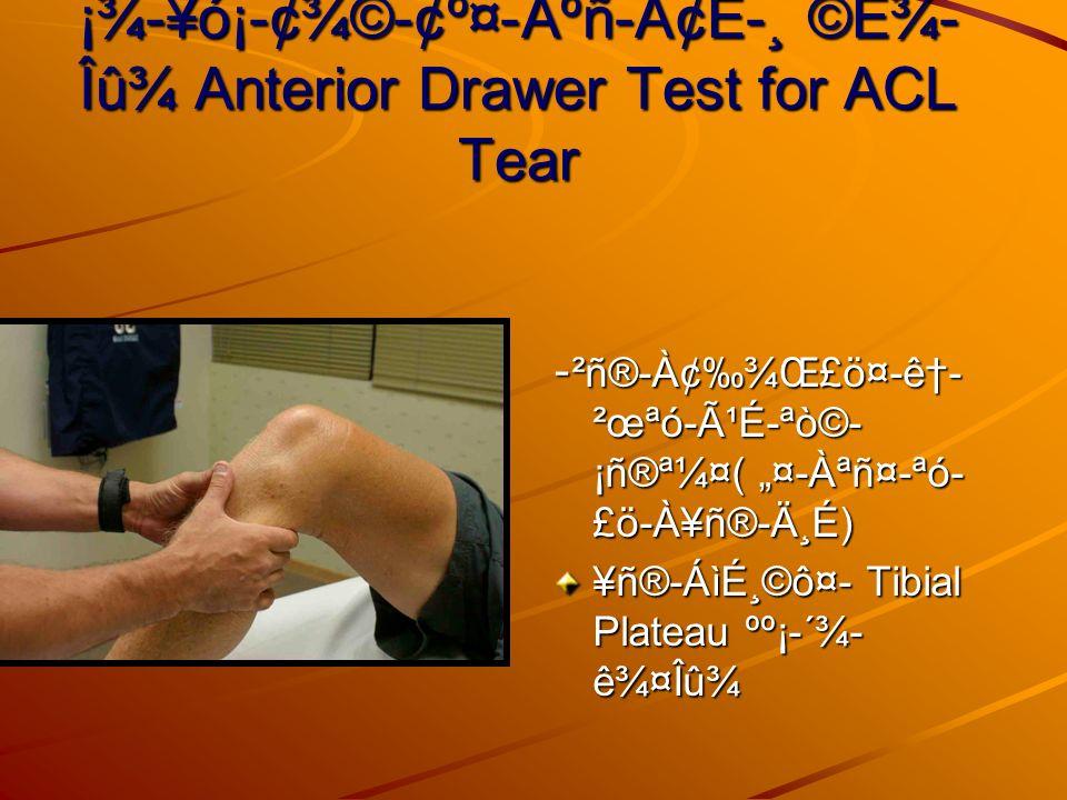 ¡¾-¥ó¡-¢¾©-¢º¤-Àºñ-Ä¢È-¸ ©É¾ Îû¾ Anterior Drawer Test for ACL Tear - ²ñ®-À¢¾Œ£ö¤-ê- ²œªó-ùÉ-ªò©- ¡ñ®ª¼¤( ¤-Àªñ¤-ªó- £ö-À¥ñ®-ĸÉ) ¥ñ®-Áìɸ©ô¤- Tibial Plateau ºº¡-´¾- 꾤Îû¾