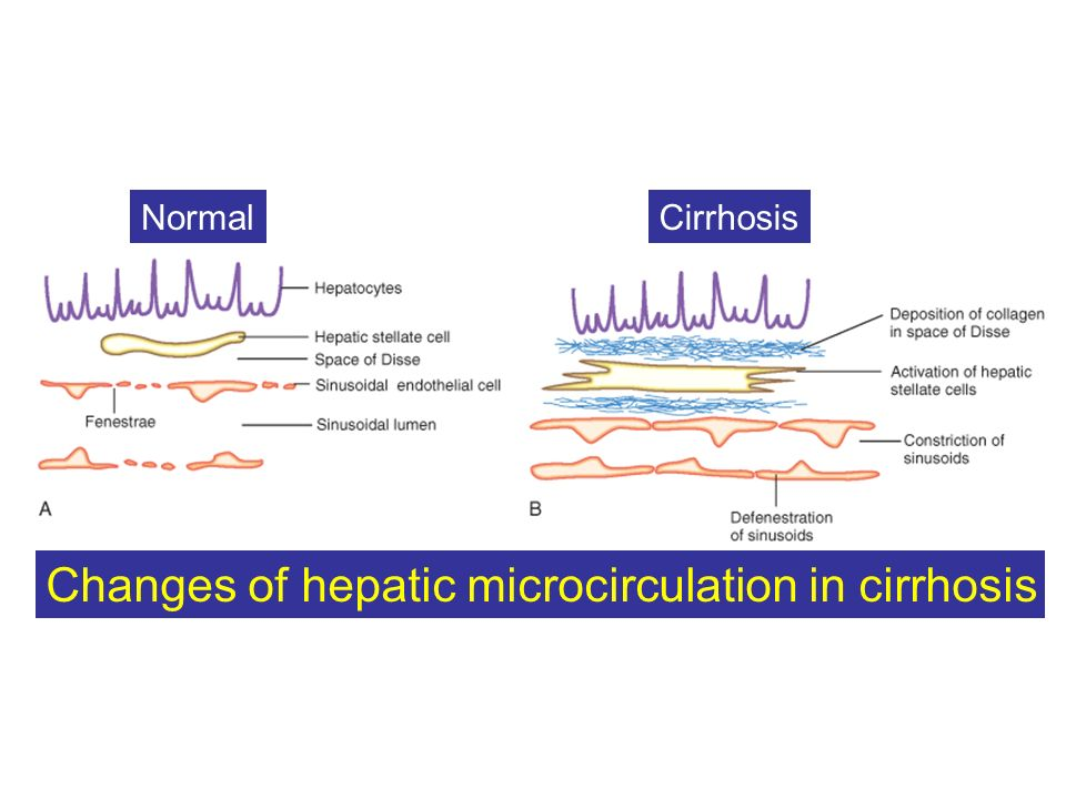NormalCirrhosis Changes of hepatic microcirculation in cirrhosis