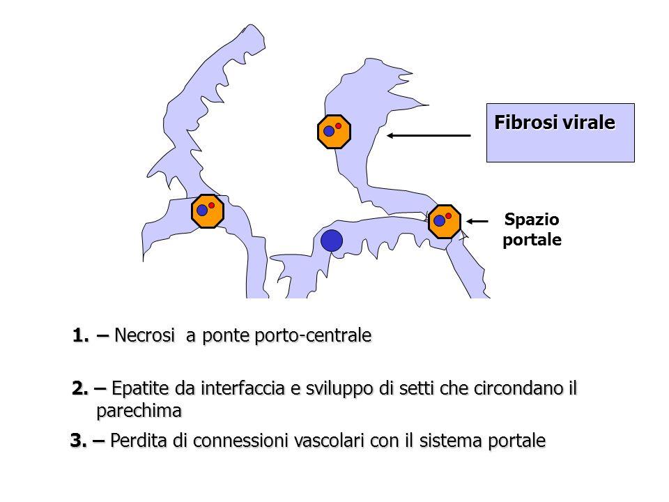 Spazio portale Fibrosi virale 1.– Necrosi a ponte porto-centrale 2.
