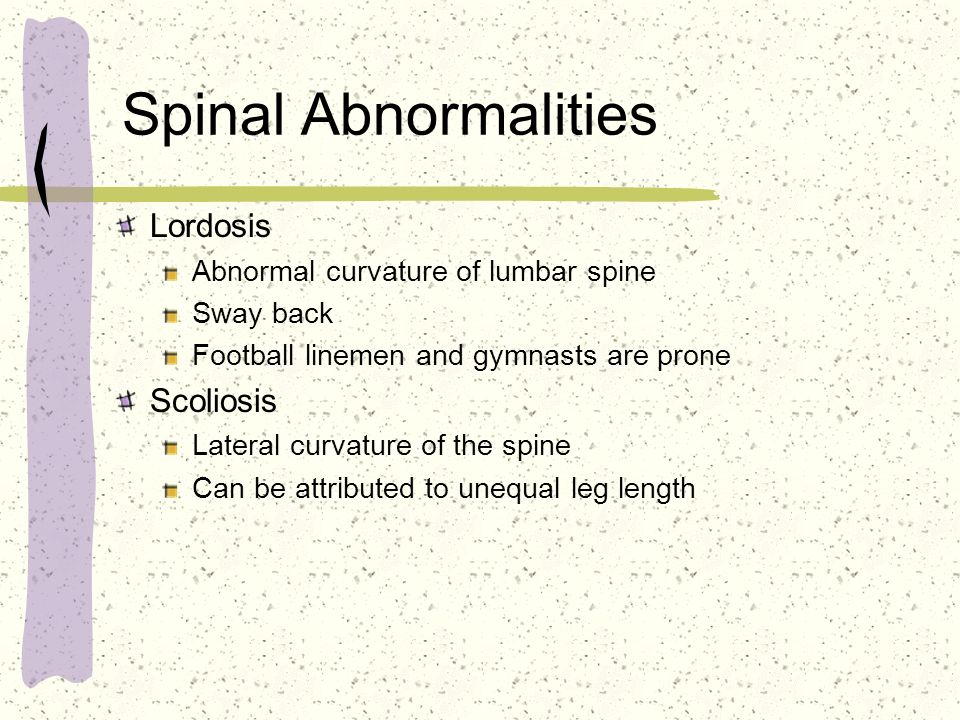 Spinal Abnormalities Lordosis Abnormal curvature of lumbar spine Sway back Football linemen and gymnasts are prone Scoliosis Lateral curvature of the