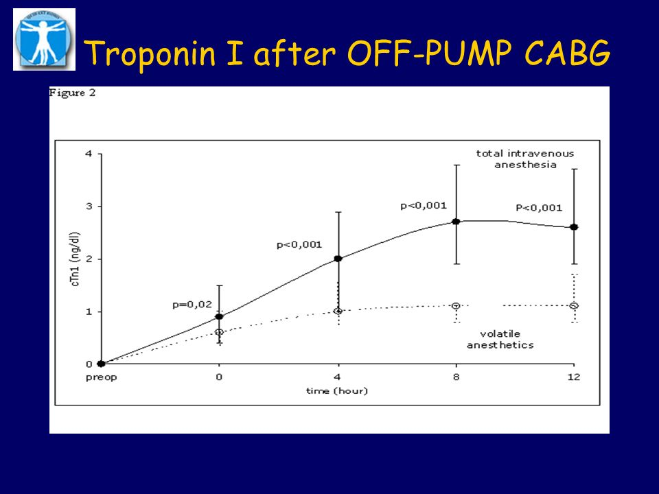 Troponin I after OFF-PUMP CABG