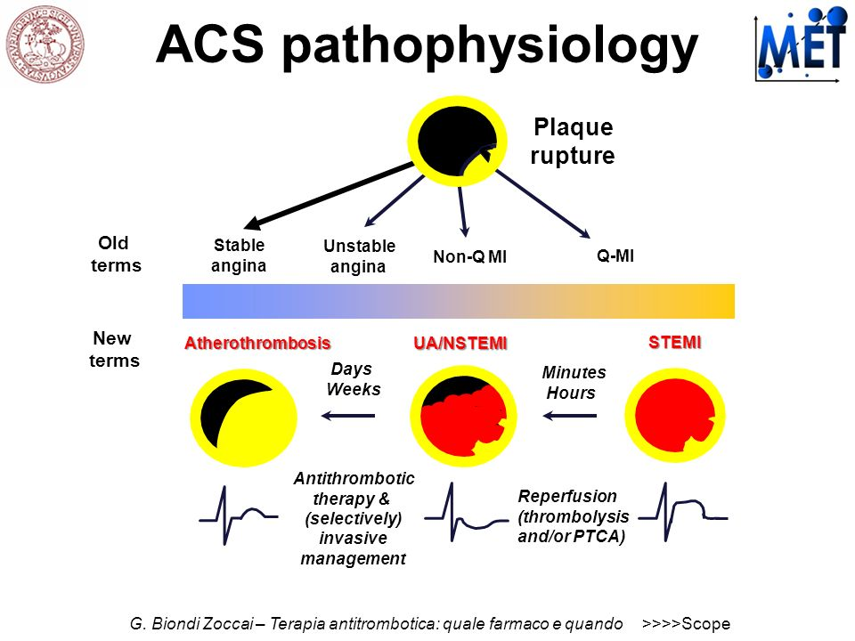 Antithrombotic therapy & (selectively) invasive management Stable angina Unstable angina Reperfusion (thrombolysis and/or PTCA) Minutes Hours Days Wee