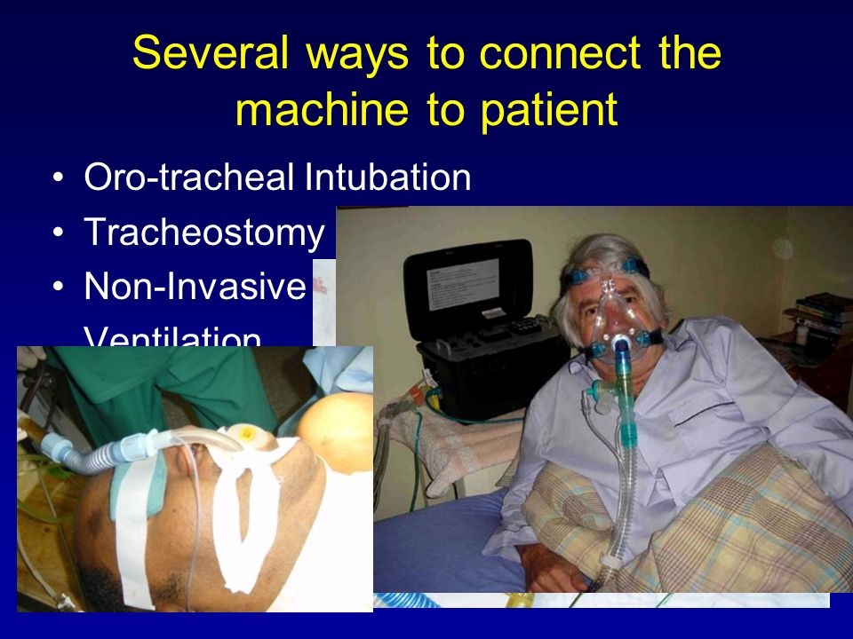 Several ways to connect the machine to patient Oro-tracheal Intubation Tracheostomy Non-Invasive Ventilation