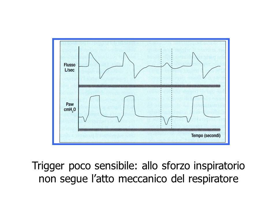Trigger poco sensibile: allo sforzo inspiratorio non segue latto meccanico del respiratore