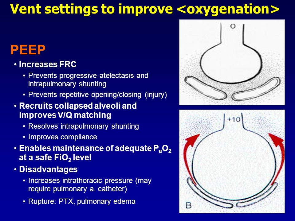 Vent settings to improve Vent settings to improve PEEP Increases FRC Prevents progressive atelectasis and intrapulmonary shunting Prevents repetitive