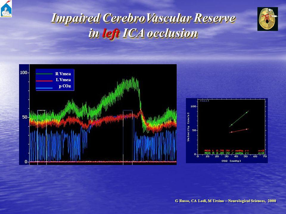 R Vmca L Vmca p CO2 Impaired CerebroVascular Reserve in left ICA occlusion Impaired CerebroVascular Reserve in left ICA occlusion G Russo, CA Lodi, M