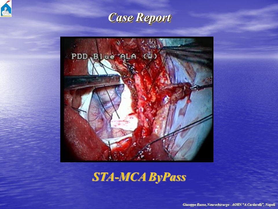 Case Report Giuseppe Russo, Neurochirurgo - AORN A.Cardarelli, Napoli STA-MCA ByPass