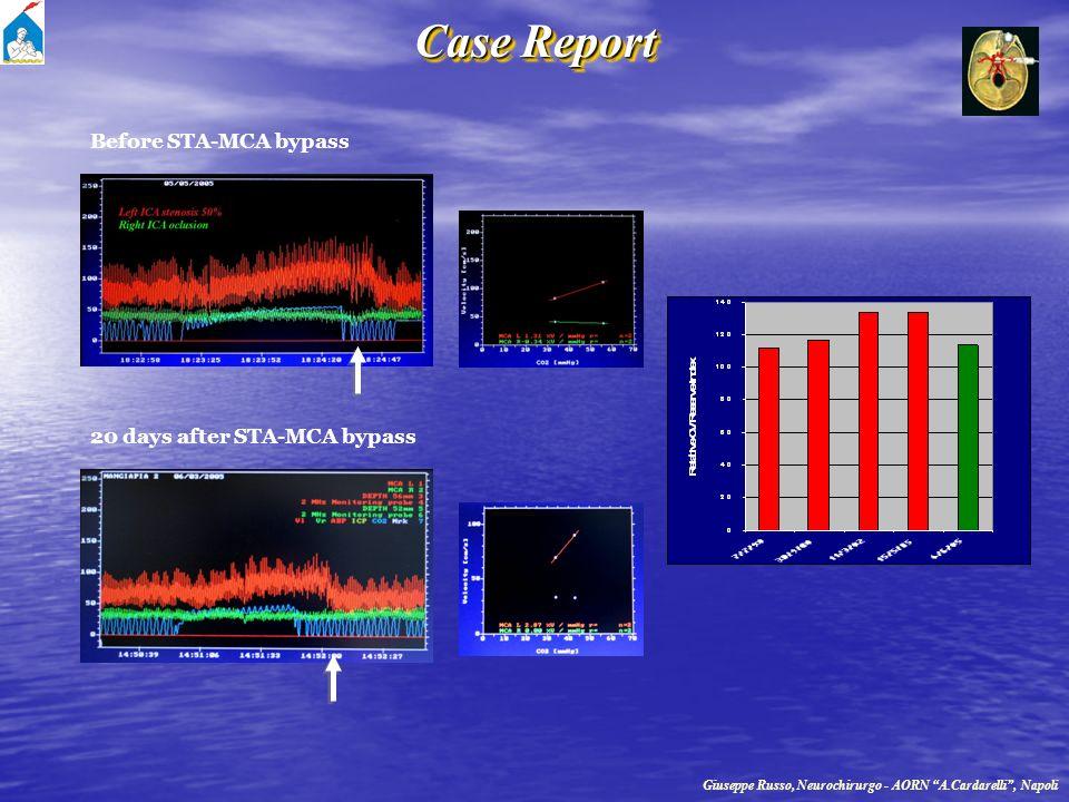Case Report Before STA-MCA bypass 20 days after STA-MCA bypass Giuseppe Russo, Neurochirurgo - AORN A.Cardarelli, Napoli