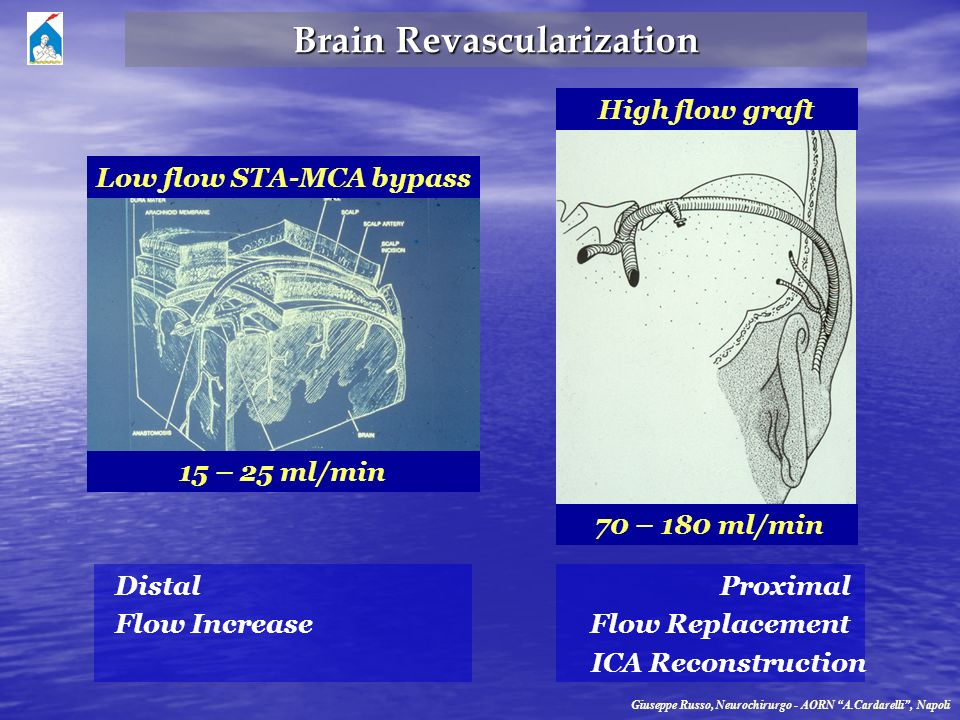 Brain Revascularization 15 – 25 ml/min Low flow STA-MCA bypass High flow graft 70 – 180 ml/min Distal Flow Increase Proximal Flow Replacement ICA Reco