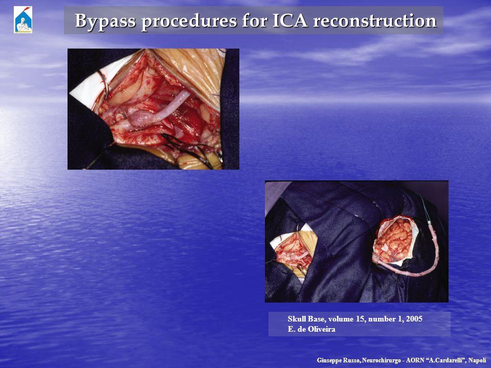 Giuseppe Russo, Neurochirurgo - AORN A.Cardarelli, Napoli Bypass procedures for ICA reconstruction Bypass procedures for ICA reconstruction Skull Base