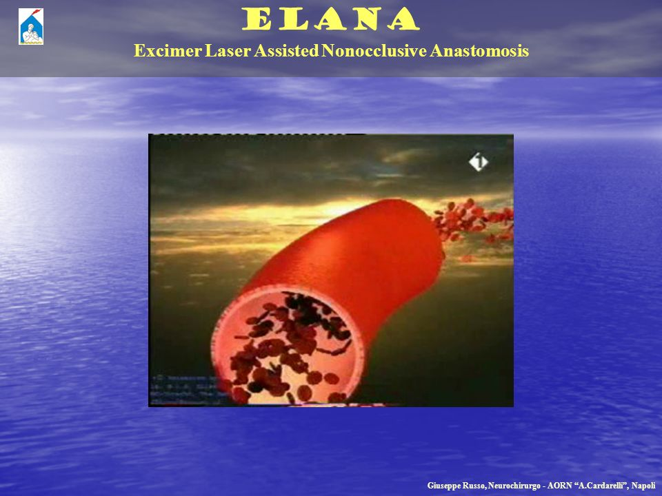ELANA Excimer Laser Assisted Nonocclusive Anastomosis Giuseppe Russo, Neurochirurgo - AORN A.Cardarelli, Napoli