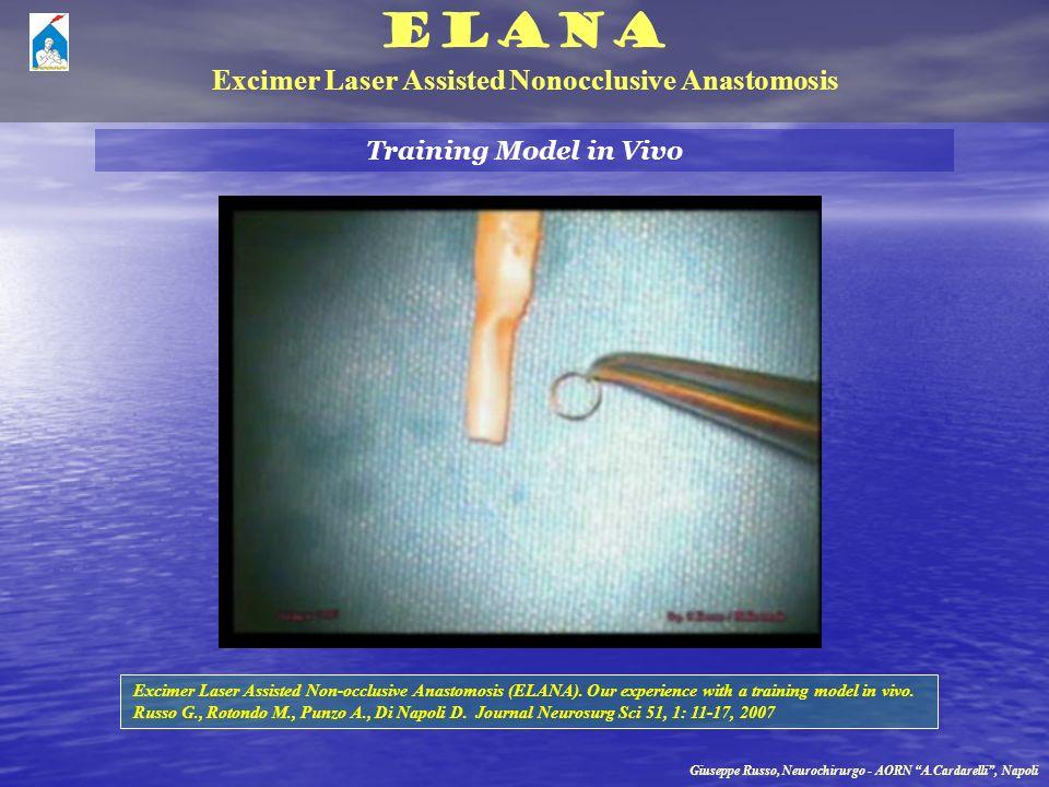 ELANA Excimer Laser Assisted Nonocclusive Anastomosis Giuseppe Russo, Neurochirurgo - AORN A.Cardarelli, Napoli Training Model in Vivo Excimer Laser A