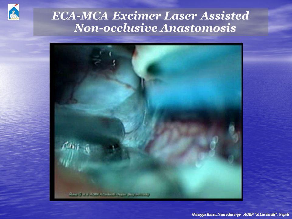 ECA-MCA Excimer Laser Assisted Non-occlusive Anastomosis Giuseppe Russo, Neurochirurgo - AORN A.Cardarelli, Napoli