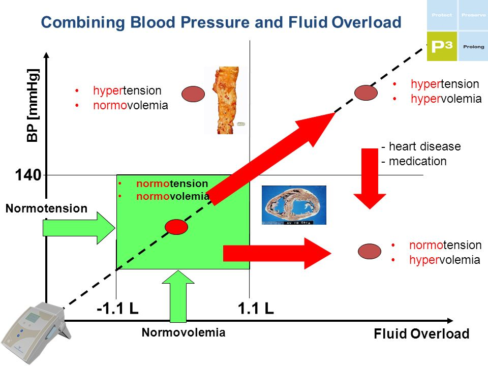 Combining Blood Pressure and Fluid Overload Fluid Overload BP [mmHg] Normovolemia Normotension 140 1.1 L - heart disease - medication -1.1 L hypertens