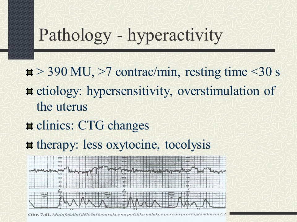 Pathology - hyperactivity > 390 MU, >7 contrac/min, resting time <30 s etiology: hypersensitivity, overstimulation of the uterus clinics: CTG changes
