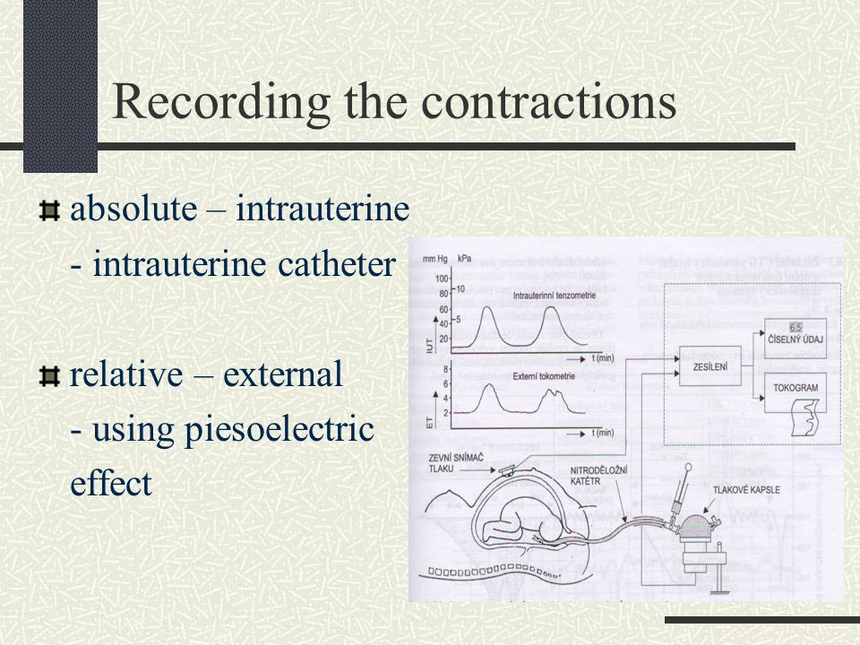 Recording the contractions absolute – intrauterine - intrauterine catheter relative – external - using piesoelectric effect