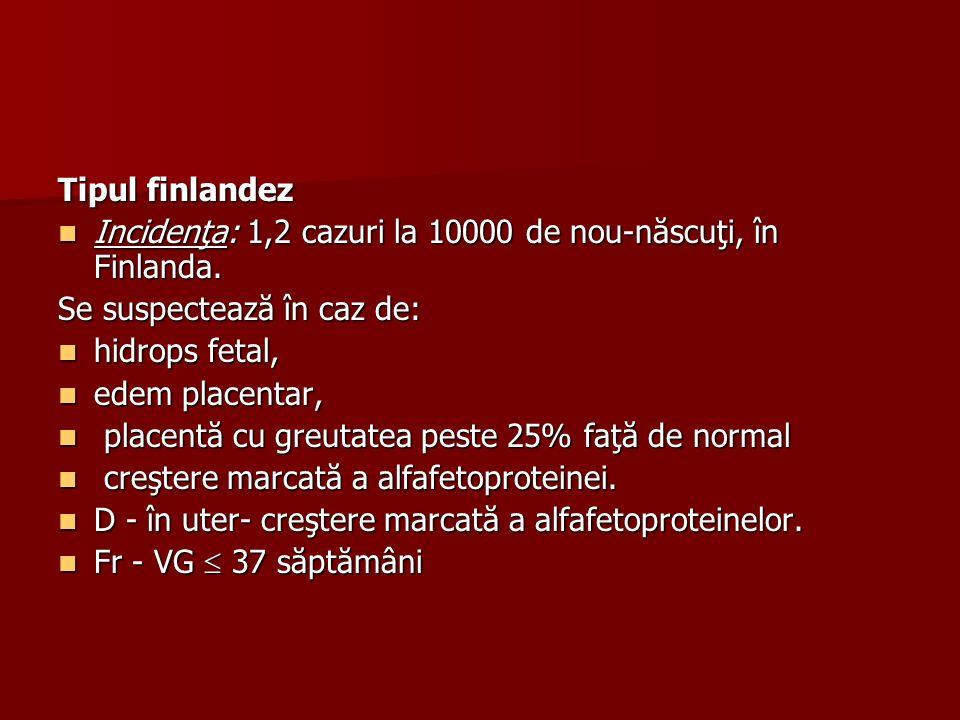 Tipul finlandez Incidenţa: 1,2 cazuri la 10000 de nou-născuţi, în Finlanda. Incidenţa: 1,2 cazuri la 10000 de nou-născuţi, în Finlanda. Se suspectează