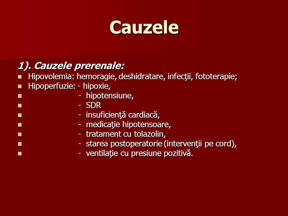 Cauzele 1). Cauzele prerenale: Hipovolemia: hemoragie, deshidratare, infecţii, fototerapie; Hipovolemia: hemoragie, deshidratare, infecţii, fototerapi