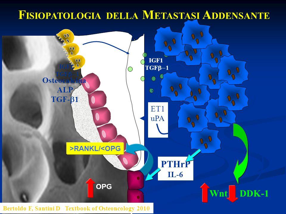 PTHrP IL-6 F ISIOPATOLOGIA DELLA M ETASTASI A DDENSANTE IGF1 TGF IGF1 TGF ET1 uPA Osteocalcina ALP TGF- 1 Bertoldo F, Santini D Textbook of Osteoncolo