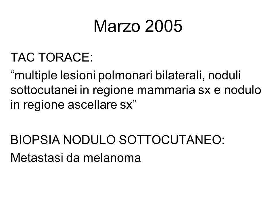 Marzo 2005 TAC TORACE: multiple lesioni polmonari bilaterali, noduli sottocutanei in regione mammaria sx e nodulo in regione ascellare sx BIOPSIA NODULO SOTTOCUTANEO: Metastasi da melanoma