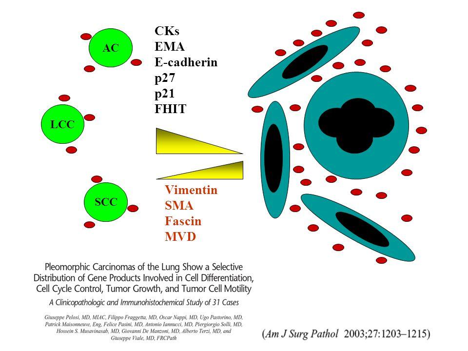 AC LCC SCC CKs EMA E-cadherin p27 p21 FHIT Vimentin SMA Fascin MVD