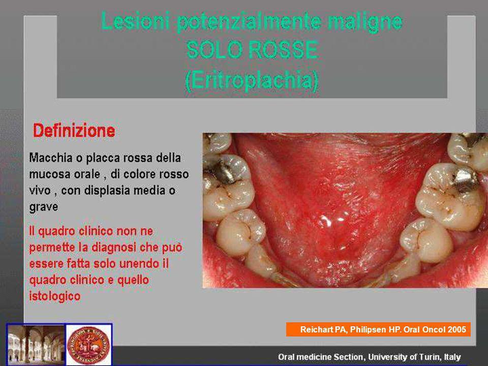 Reichart PA, Philipsen HP. Oral Oncol 2005