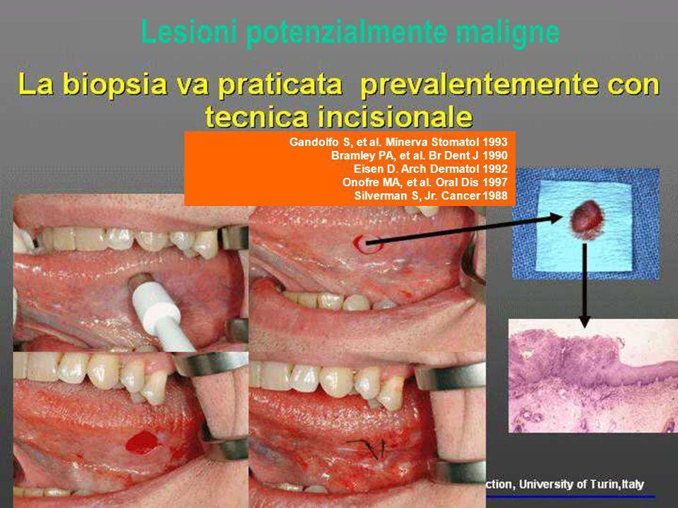 3. Cosa dire al paziete Lesioni potenzialmente maligne Gandolfo S, et al. Minerva Stomatol 1993 Bramley PA, et al. Br Dent J 1990 Eisen D. Arch Dermat