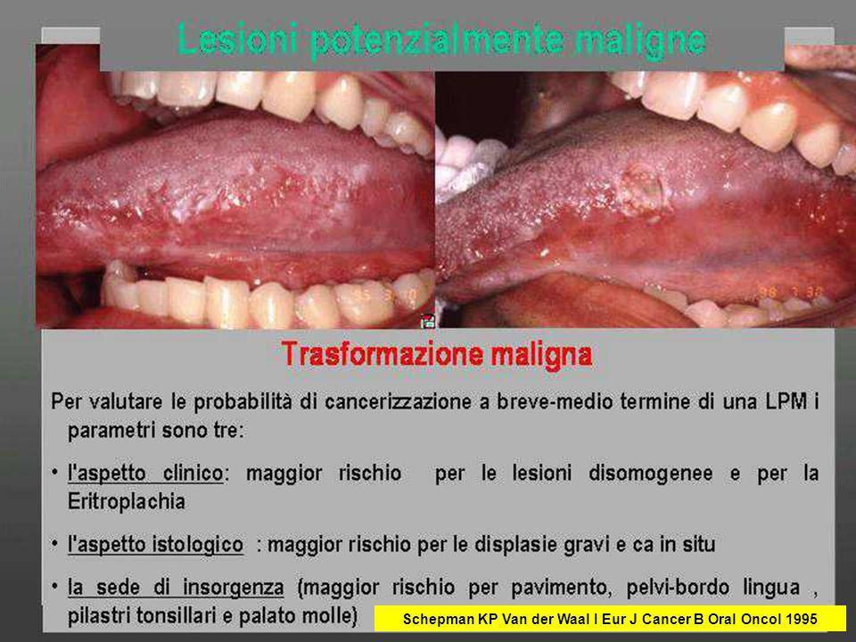 Schepman KP Van der Waal I Eur J Cancer B Oral Oncol 1995